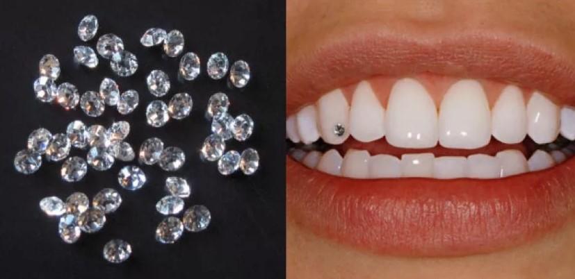 Использование фианита в стоматологии